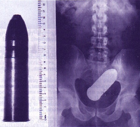 Live ammunition in ass x-ray